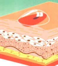 ulceras cutáneas