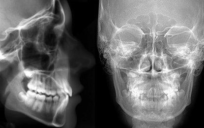 Técnico Superior Radiodiagnóstico